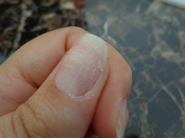 cracked nail that has been lightly buffed