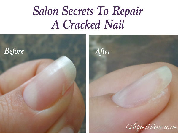 two pictures - cracked nail and a repaired cracked nail