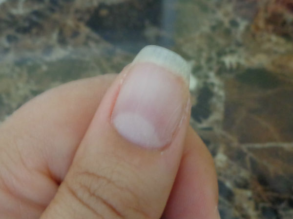 nail with repaired crack