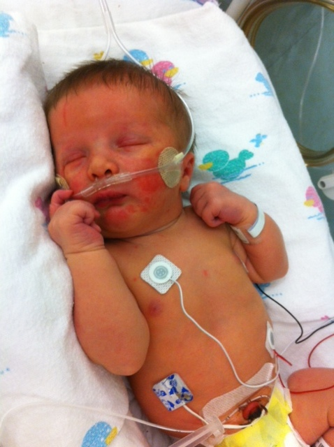 dalton in nicu