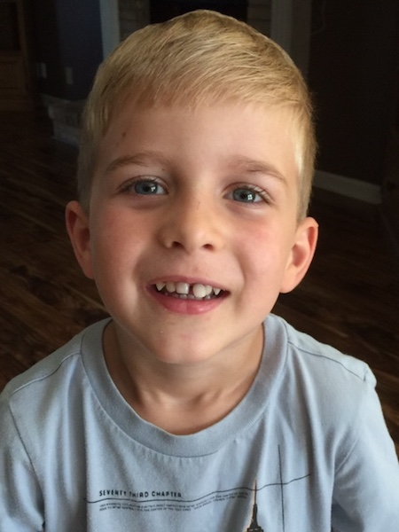 dalton with loose tooth